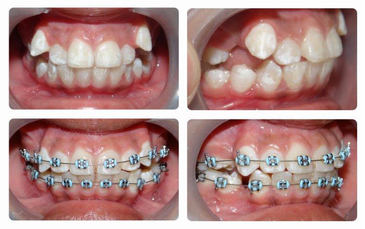 Ortodoncia dientes