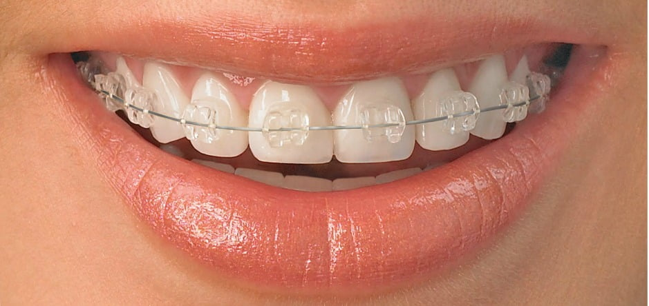 Ortodoncia