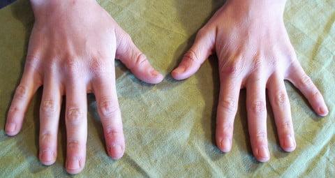 Hueso Pisiforme articulaciones