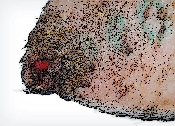 Necrosis célula
