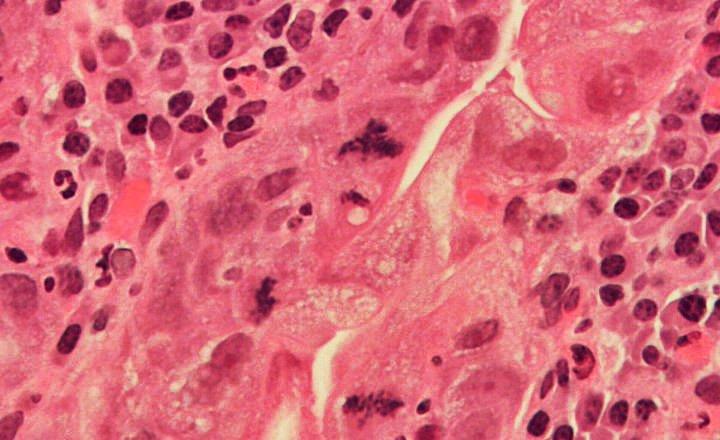 Displasia organos
