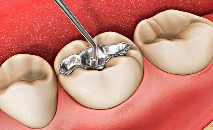 Amalgama diente