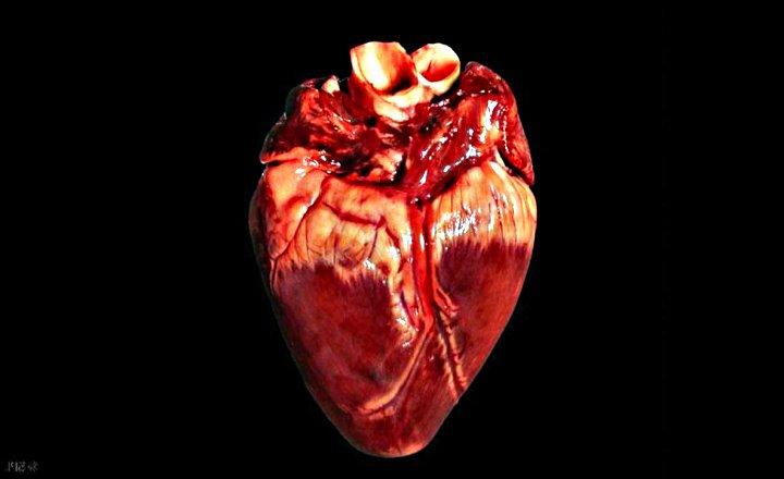 Cáncer de Corazón