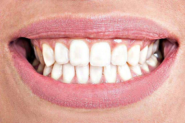 Oclusión diente