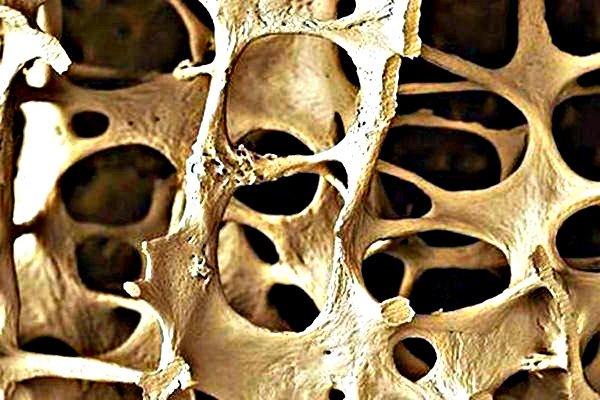 Osteoporosis fractura